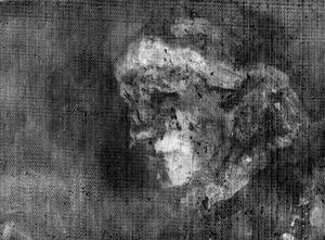 röntgenonderzoek