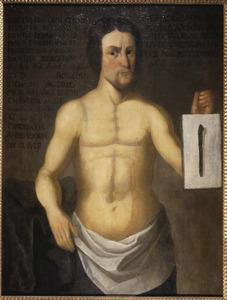 Andreas Grünheide na zijn operatie
