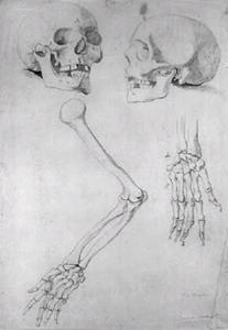 Twee schedels, een arm en een hand