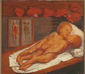 Doodsbedportret van een Siamese tweeling