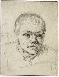 Kop van een man met congenitale (= aangeboren) syphilis